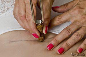 Entstörung von Narben